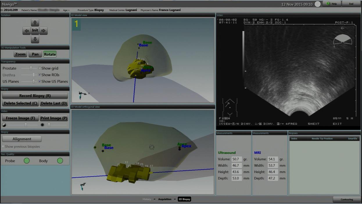 fusion biopsia prostata centri in italia video